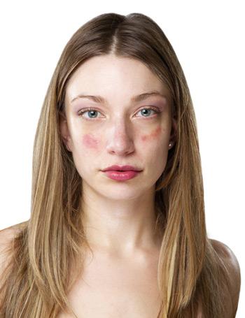 az arcon vörös folt és viszketés pikkelysömör kezelése jód